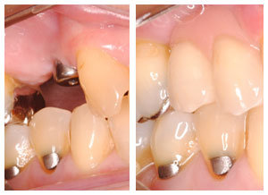 grand-rapids-dentistry-tooth-implant-teeth-implants