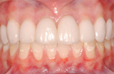 Veneers-after-dental-treatment-at-616-dental-studio