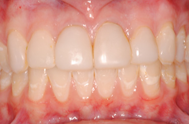 Veneers-before-dental-treatment-at-616-dental-studio