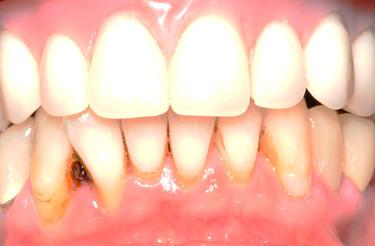 dental-implant-reconstruction-after-image-grand-rapids-michigan