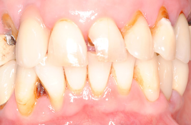 dental-implant-reconstruction-before-image-grand-rapids-michigan