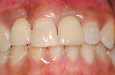dental-implants-in-grand-rapids-michigan-after-picture