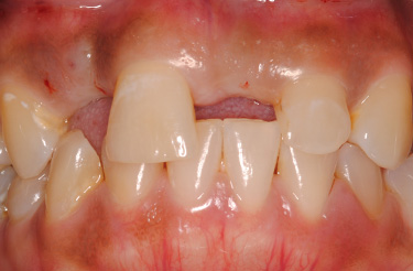dental-implants-in-grand-rapids-michigan-before-picture