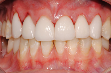 dental-veneers-in-grand-rapids-michigan-success-story