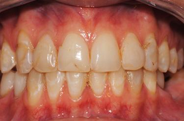 dental-veneers-in-grand-rapids-michigan