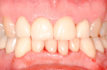 full-mouth-reconstruction-dental-procedure-grand-rapids-after