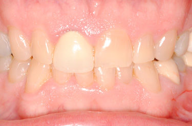 full-mouth-reconstruction-dental-procedure-grand-rapids-before