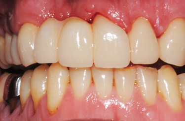 porcelain-bridge-crowns-dentistry-in-grand-rapids-michigan-after
