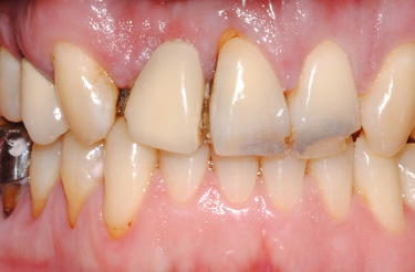 porcelain-bridge-crowns-dentistry-in-grand-rapids-michigan-before