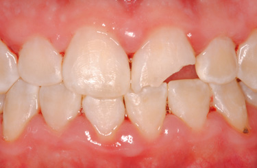 porcelain-crown-dental-work-grand-rapids-michigan-before-picture