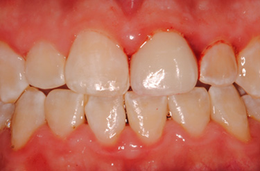 porcelain-crown-dental-work-grand-rapids-michigan