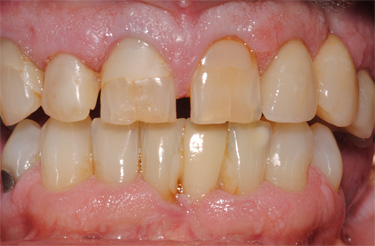 porcelain-crowns-before-picture-dentistry-grand-rapids-michigan