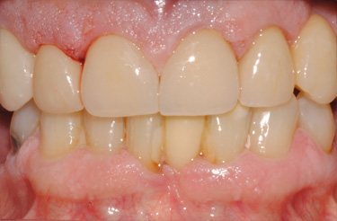 porcelain-crowns-dentistry-grand-rapids-michigan